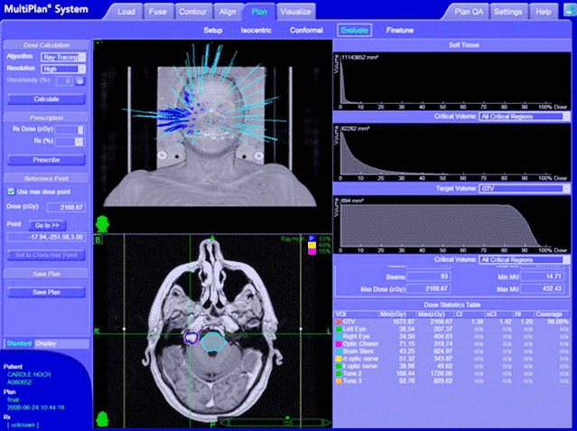 Планирование лечения на кибер-ноже