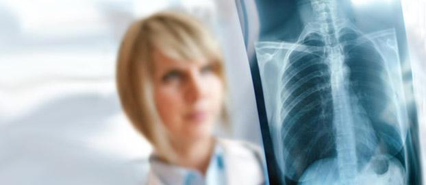 Метод визуальной диагностики рака легких