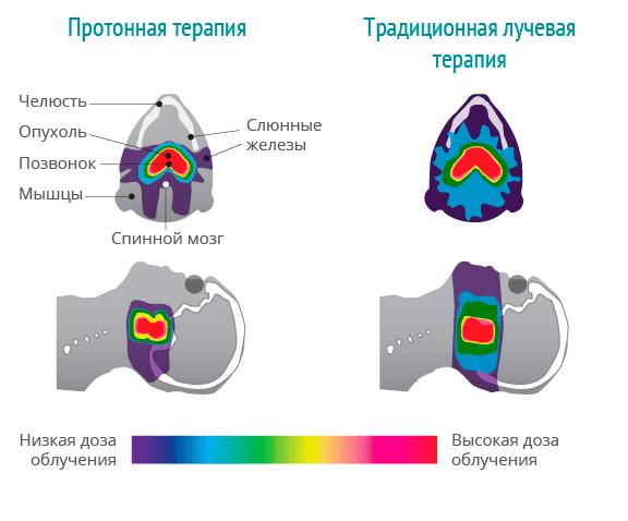Сравнение воздействия на ткани протонной терапии и ионизирующего излучения