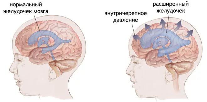 При повышении внутричерепного давления скапливающаяся в желудочках мозга жидкость приводит к появлению тупой распирающей боли