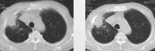 Кортико-плевральный рак на снимках