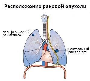 Периферический и центральный типы рака легких