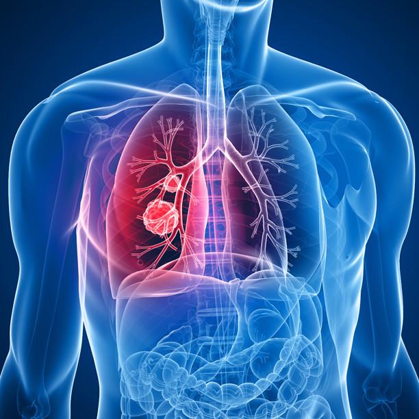Радиохирургическое разрушение раковых узлов в бронхах эффективно и безопасно для пациента