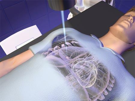 Современные безопасные и эффективные радиохирургические методы  – альтернатива традиционной операции