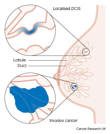Различие между карциномой in citu и инфильтративным протоковым раком груди