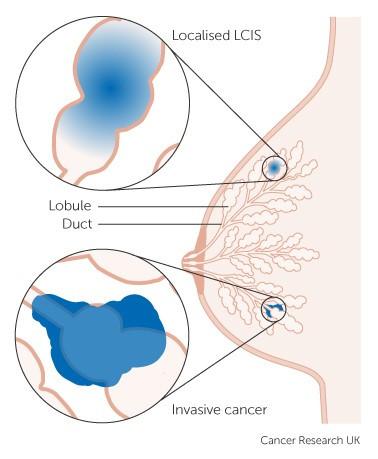Различие между неинвазивным и инфильтративным дольковым раком груди
