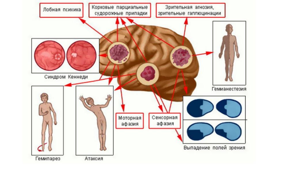 Различные проявления опухолей головного мозга