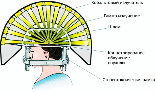 Схема работы Гамма-ножа